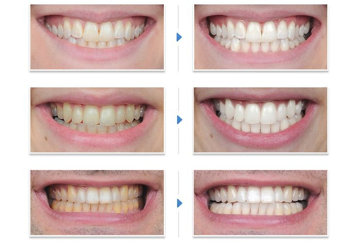 How Does the Belissas Teeth Whitening System Work?